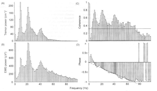 Power speectral estimates and coherence analysis of 50% MVC of 1DI against an elastic resustance. Peaks at 10, 22 and 41 Hz in accelerometer tremor record and rectified surface EMG power spectra. Coherence analysis reveals strong coherence especially at these peaks. Upper horizontal line is the 95% confidence interval for significantly greater coherence compared to the whole spectrum – only lower 100 Hz of spectrum shown. Lower horiz line is 95% confidence interval for non-zero coherence. There is a constant linear phase lag of tremor behind EMG at all frequencies, indicating a value of 6.5 ms lag.